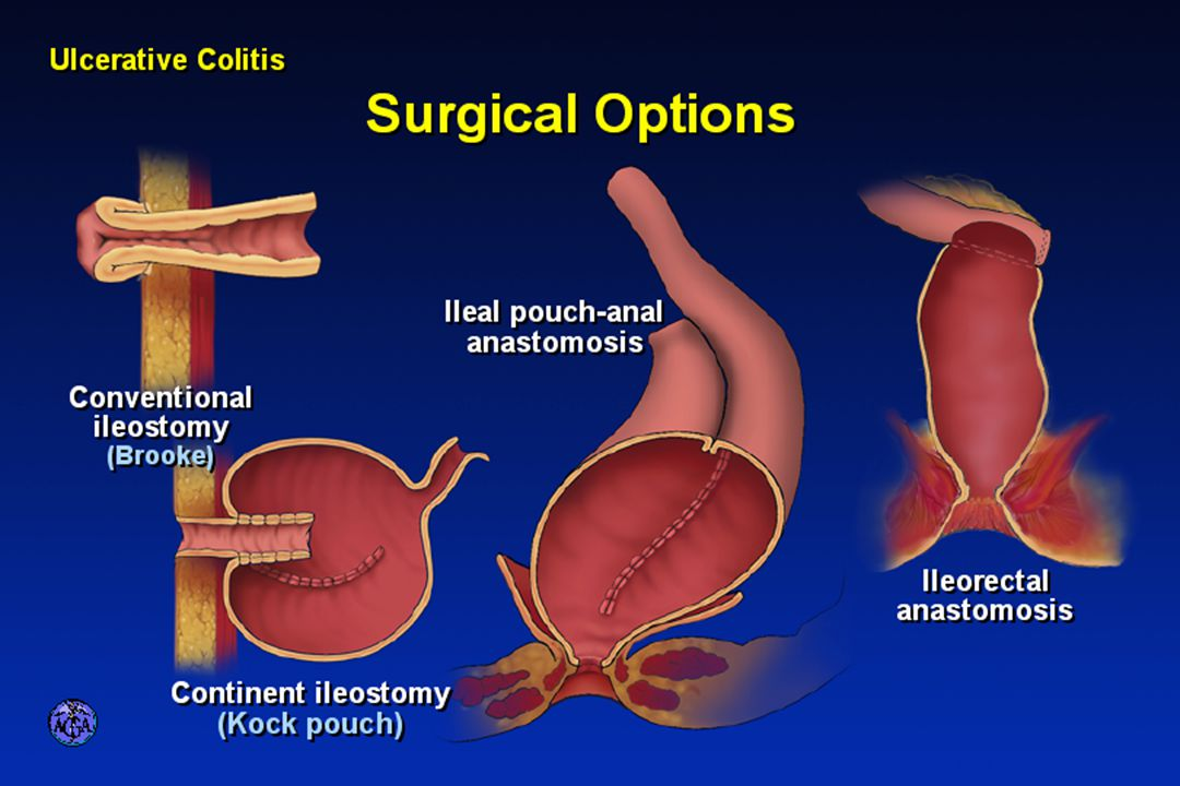 SURGICAL OPTIONS IN ULCERATIVE COLITIS