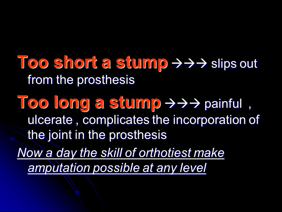 Too short a stump  slips out from the prosthesis