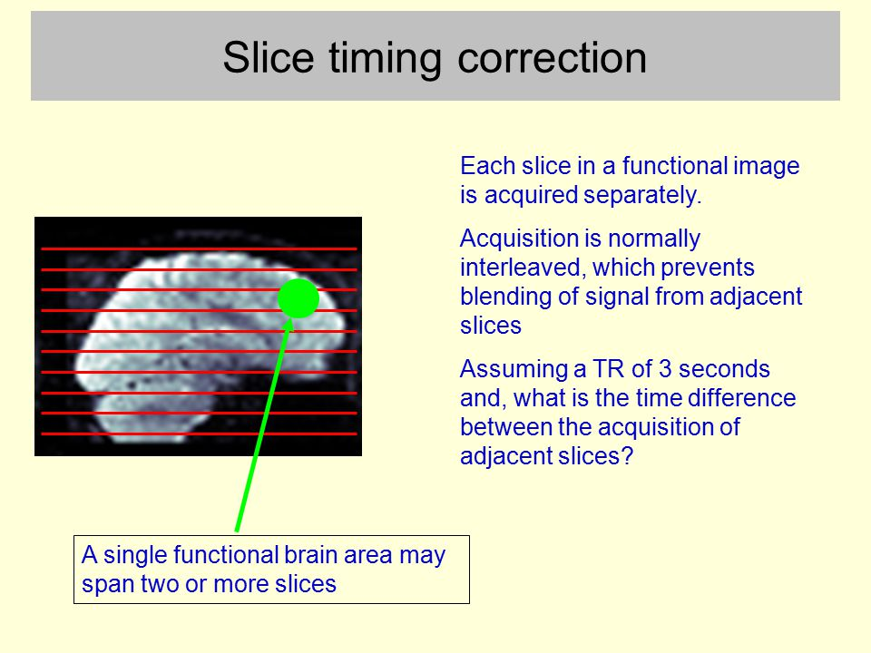 Slice timing correction