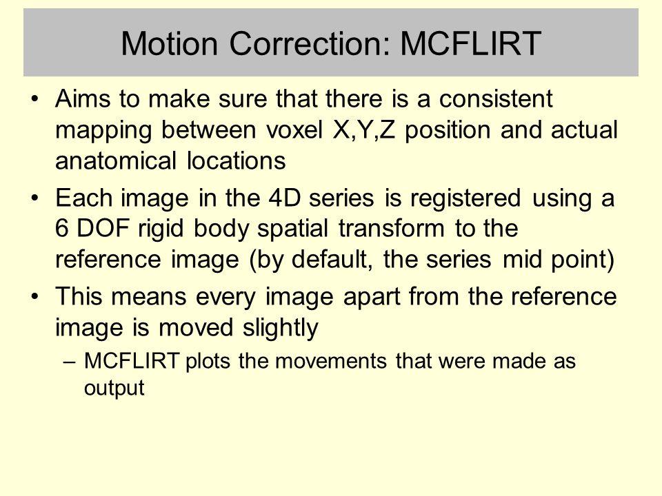 Motion Correction: MCFLIRT