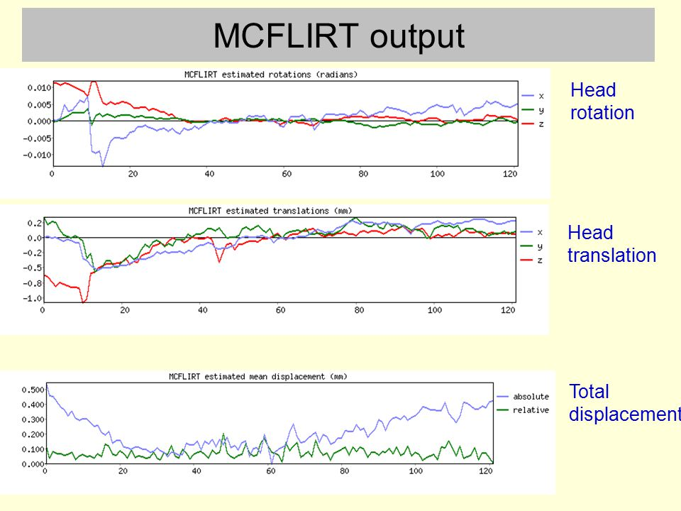 MCFLIRT output Head rotation Head translation Total displacement