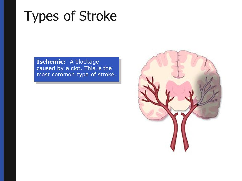 Types of Stroke Ischemic: A blockage caused by a clot. This is the most common type of stroke.