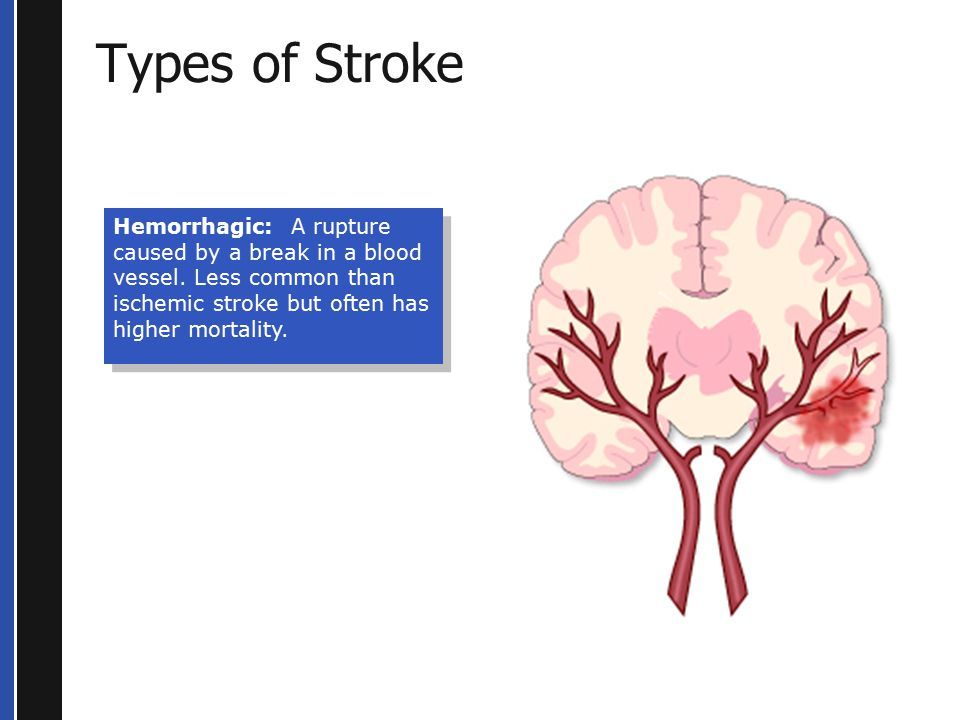 Types of Stroke Hemorrhagic: A rupture caused by a break in a blood vessel.