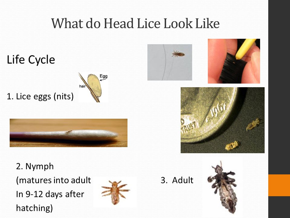 What do Head Lice Look Like