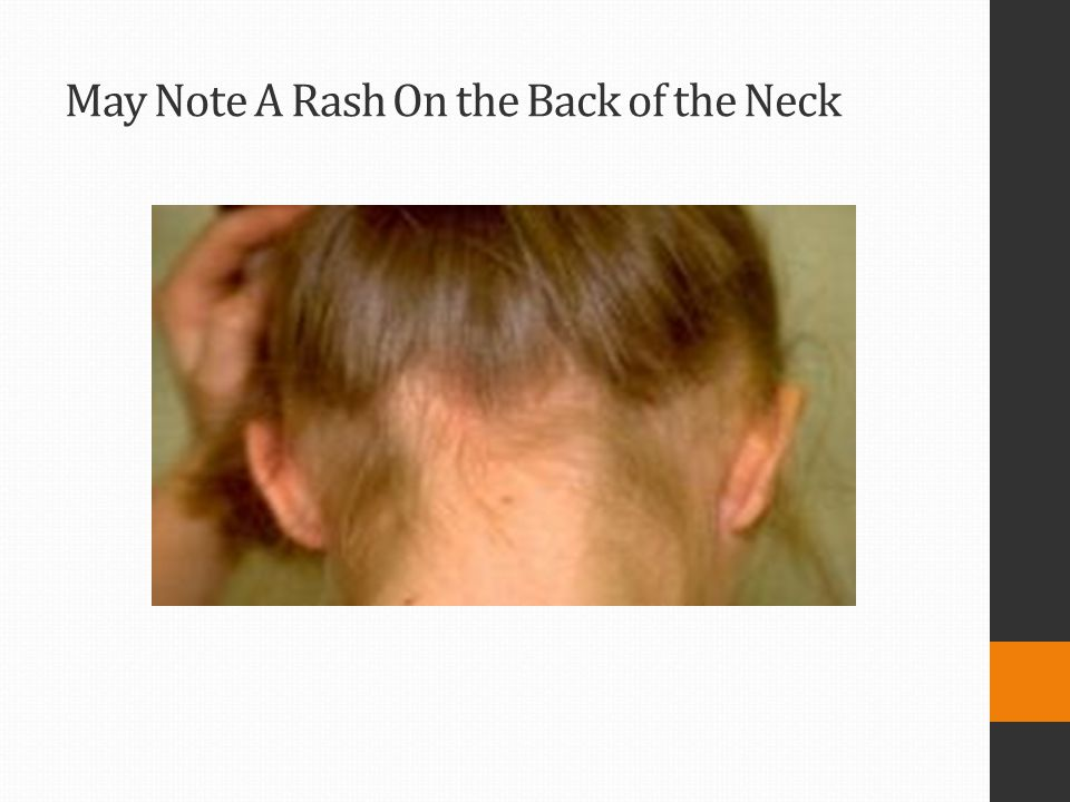 May Note A Rash On the Back of the Neck