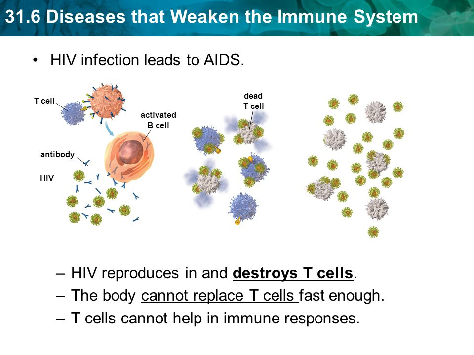 HIV infection leads to AIDS.