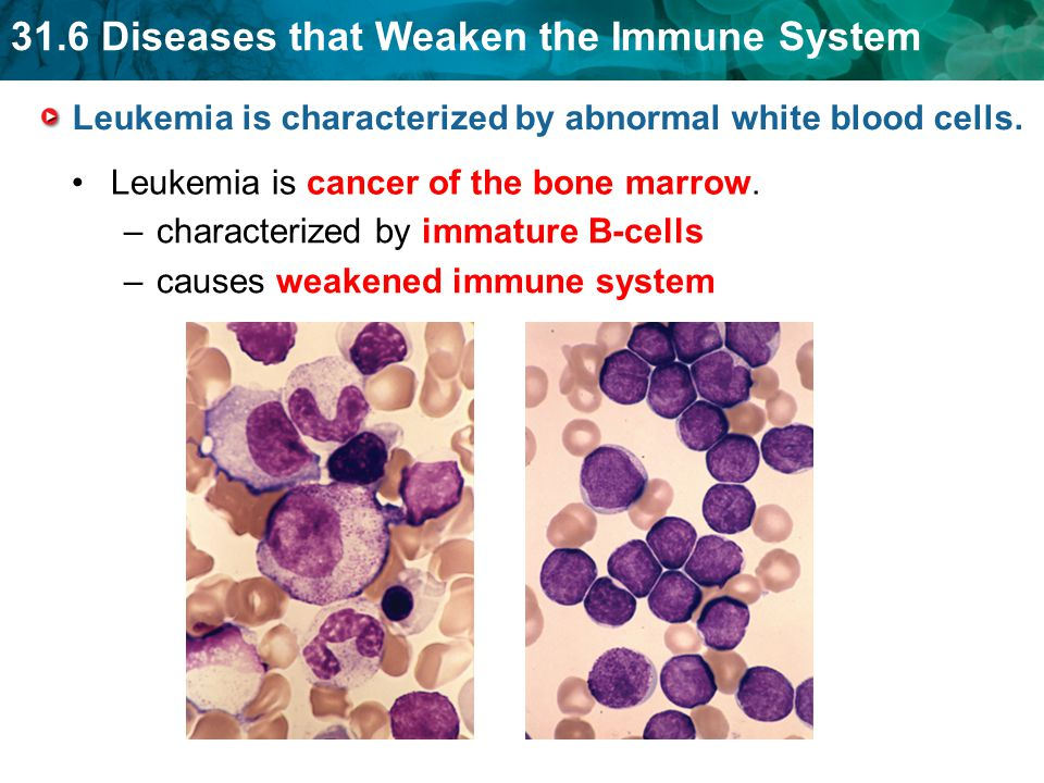 Leukemia is characterized by abnormal white blood cells.