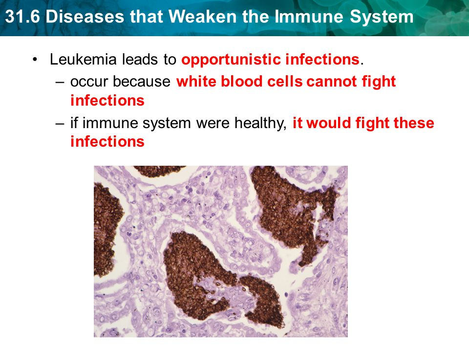 Leukemia leads to opportunistic infections.