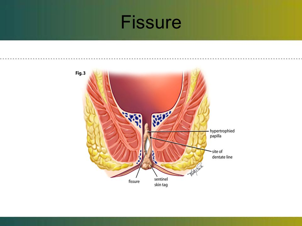 Fissure Fissures often cause pain and itch and spasms of the muscles around the anal canal