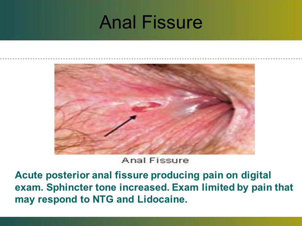 Anal Fissure For unusual location consider syphilis, tuberculosis, leukemic infiltrates, carcinoma, herpes, AIDS, IBD, occult abscess.