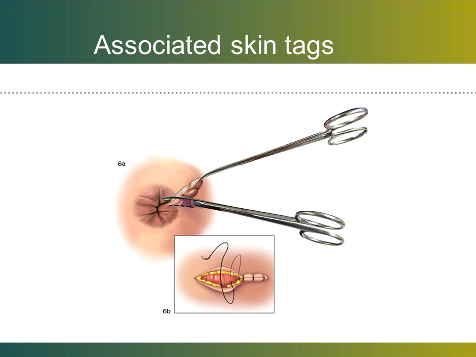 Associated skin tags