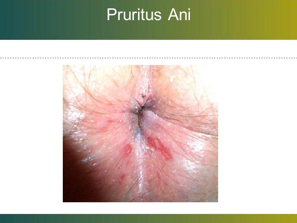 Pruritus Ani