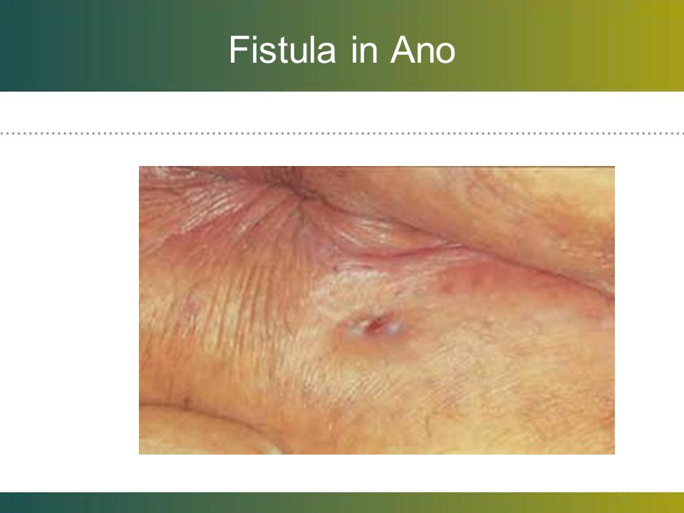 Fistula in Ano Cryptoglandular infections that begin in anal glands and present as abscess and then fistula.