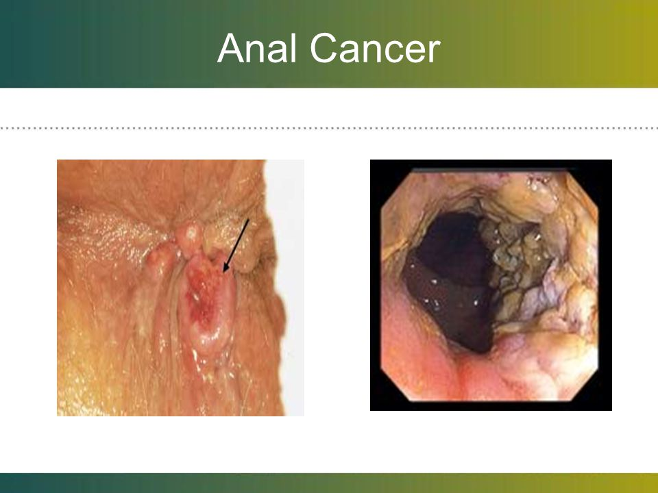 Anal Cancer Most associated with HPV infections. Not prevented by condoms.