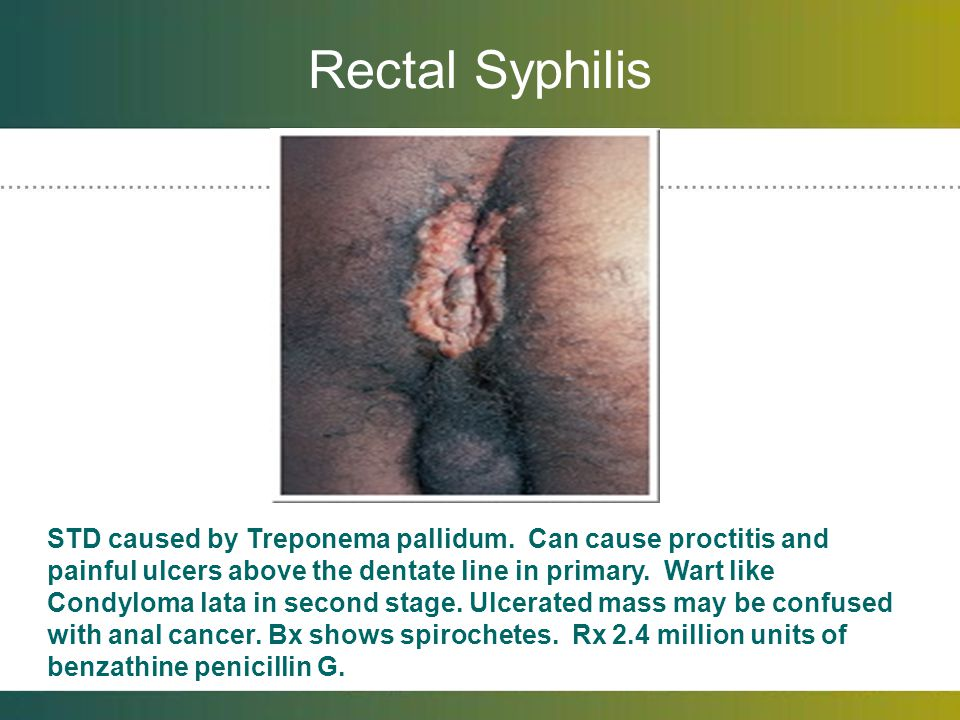 Rectal Syphilis