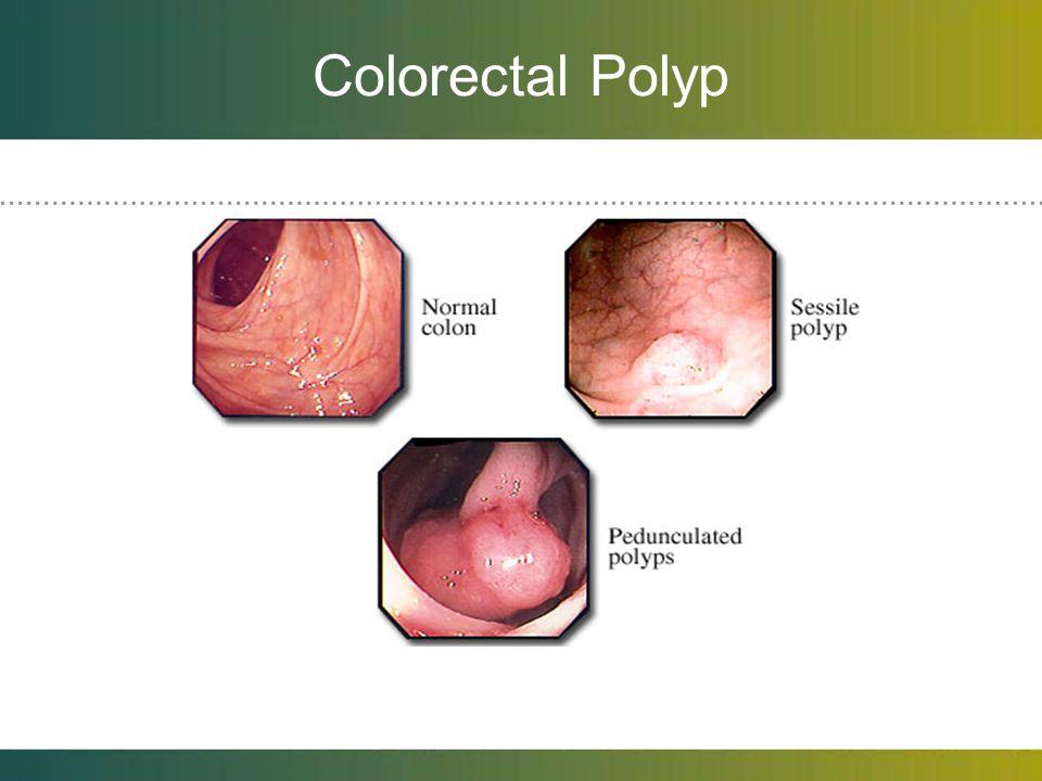 Colorectal Polyp