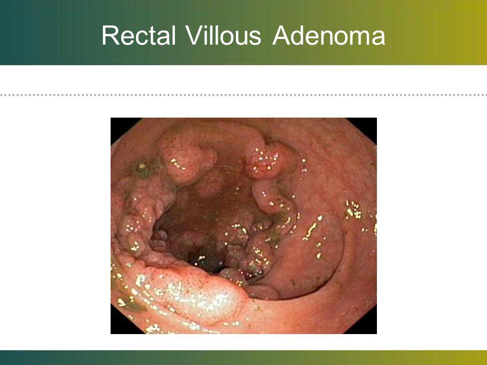 Rectal Villous Adenoma