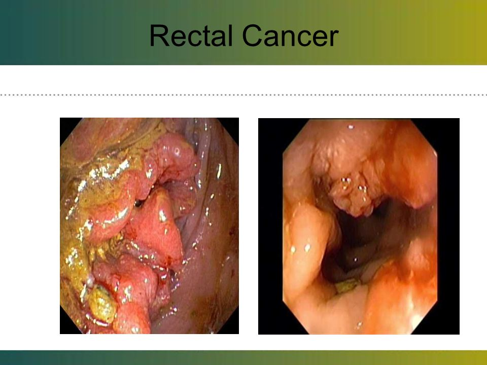 Rectal Cancer About 2% of patients in the Cleator series and CRC.
