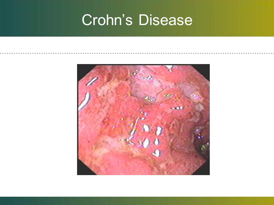 Crohn's Disease Friable, bleeding, ulcers. Pseudopolyps with intervening normal mucosa.