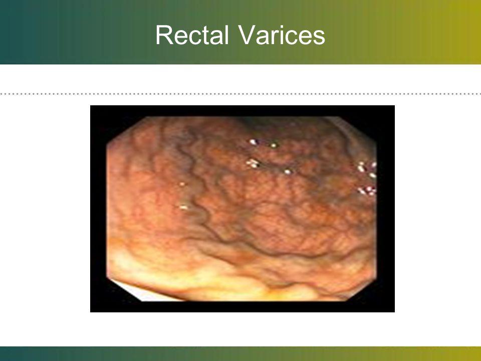 Rectal Varices