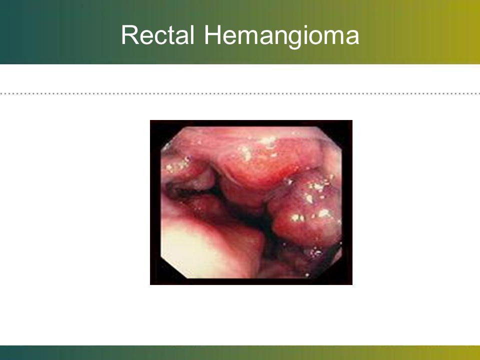 Rectal Hemangioma