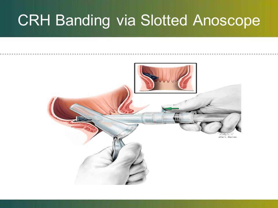 CRH Banding via Slotted Anoscope