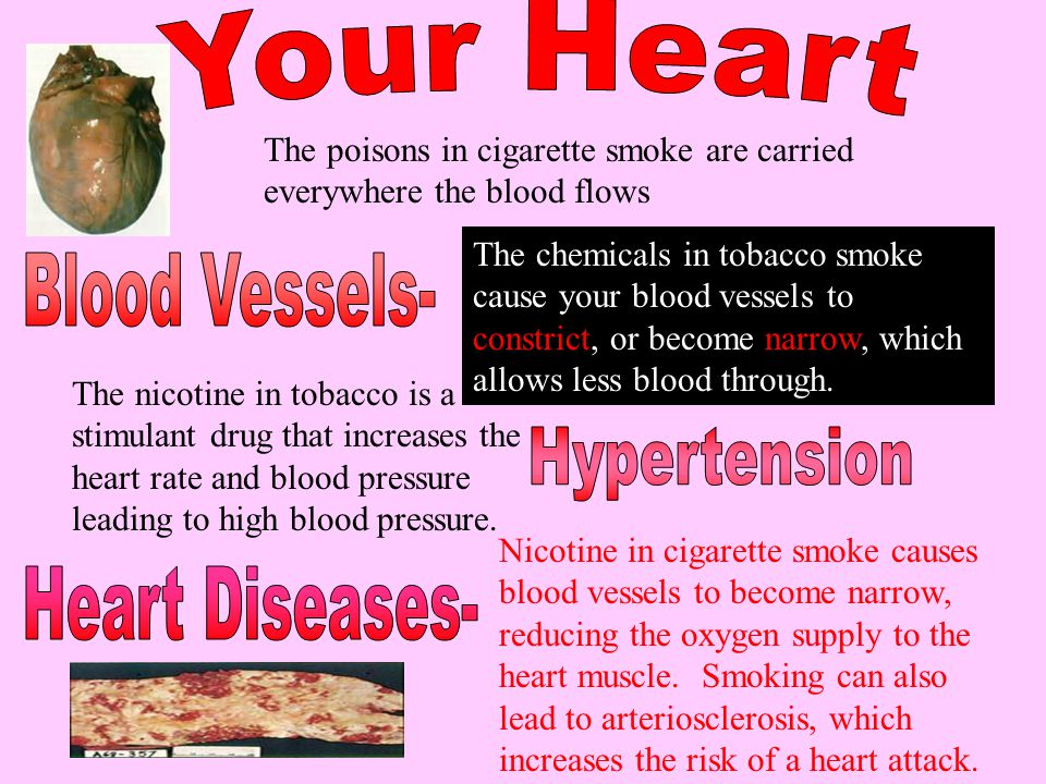 Blood Vessels- Hypertension Heart Diseases- Your Heart