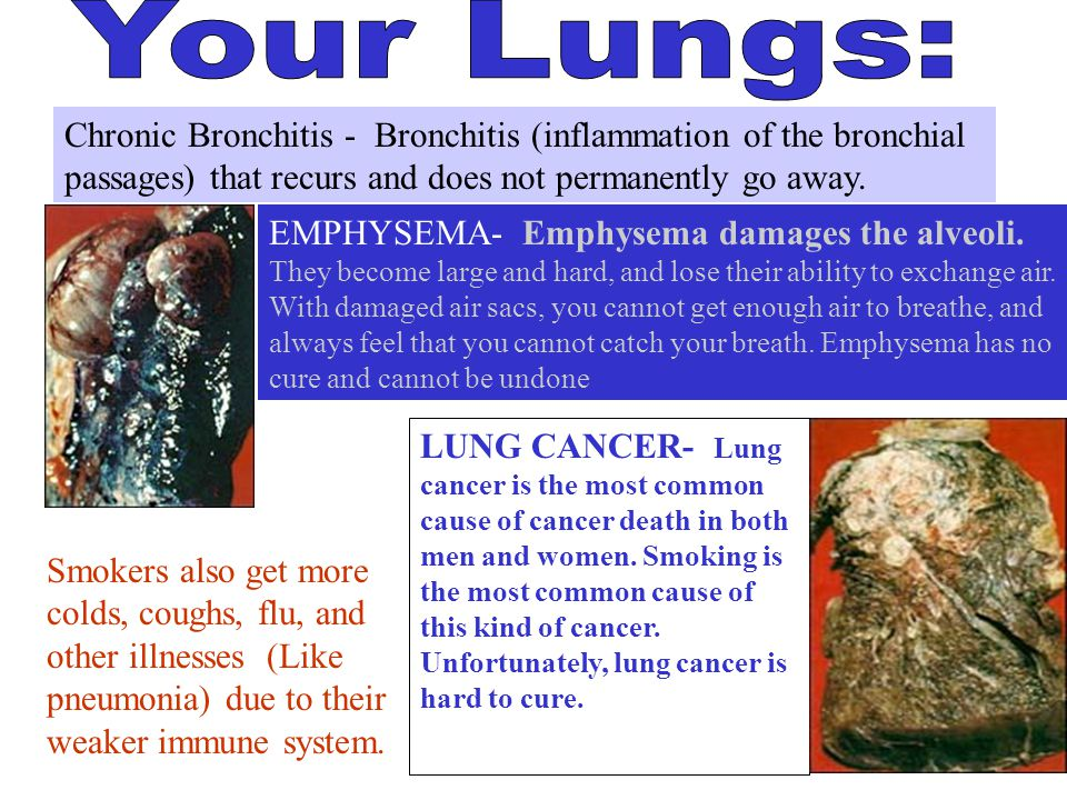 Your Lungs: Chronic Bronchitis - Bronchitis (inflammation of the bronchial passages) that recurs and does not permanently go away.