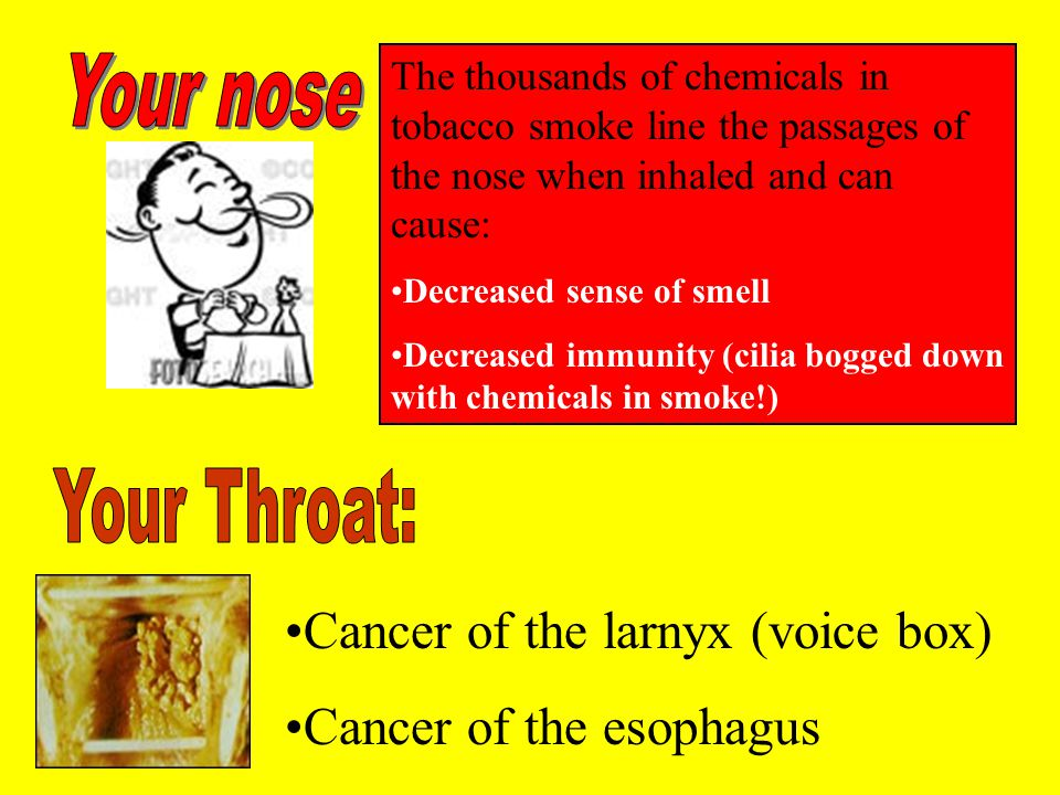 Cancer of the larnyx (voice box) Cancer of the esophagus