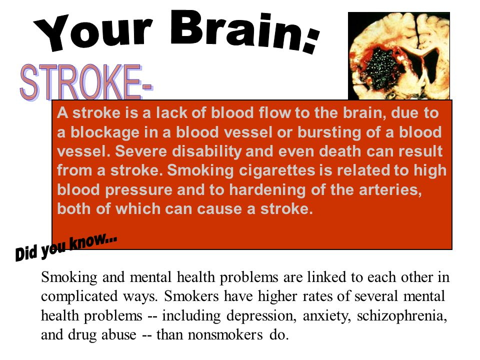 Your Brain: STROKE-