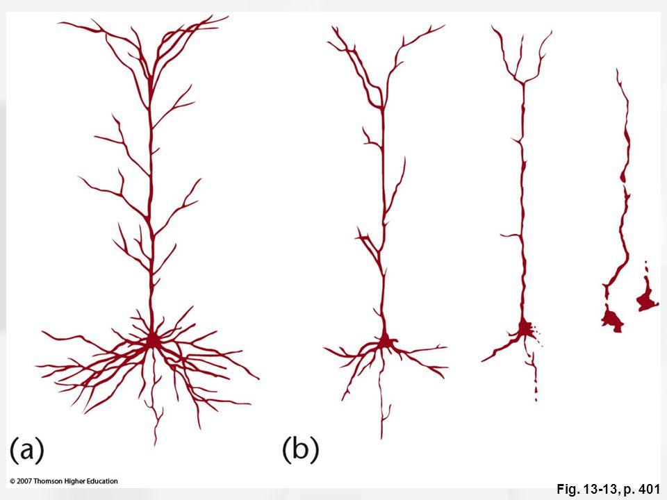 Figure 13.13: Neuronal degeneration in Alzheimer's disease.