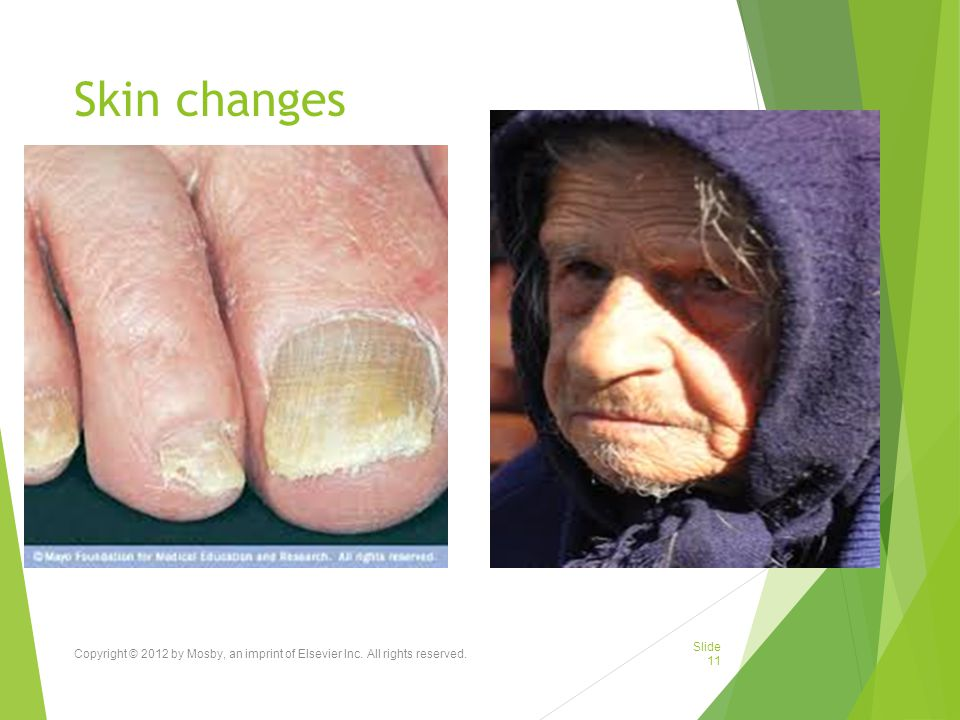 Skin changes Copyright © 2012 by Mosby, an imprint of Elsevier Inc. All rights reserved.