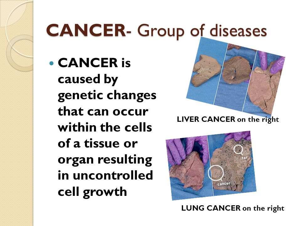 CANCER- Group of diseases