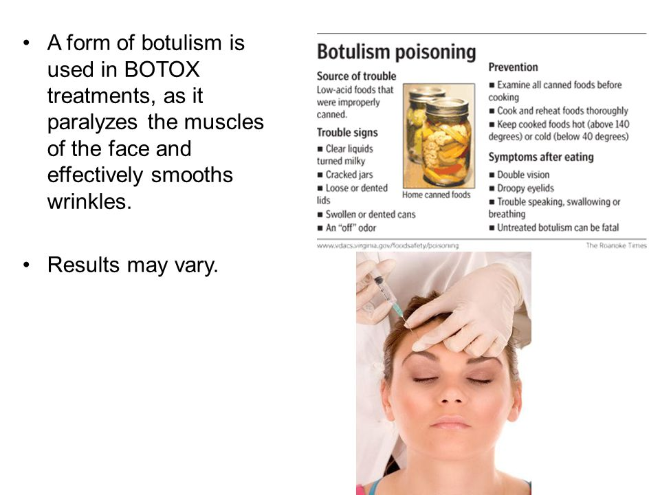 A form of botulism is used in BOTOX treatments, as it paralyzes the muscles of the face and effectively smooths wrinkles.