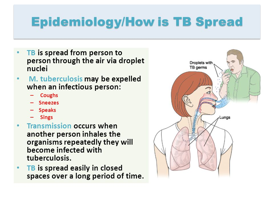 Epidemiology/How is TB Spread