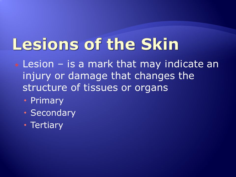 Lesions of the Skin Lesion – is a mark that may indicate an injury or damage that changes the structure of tissues or organs.