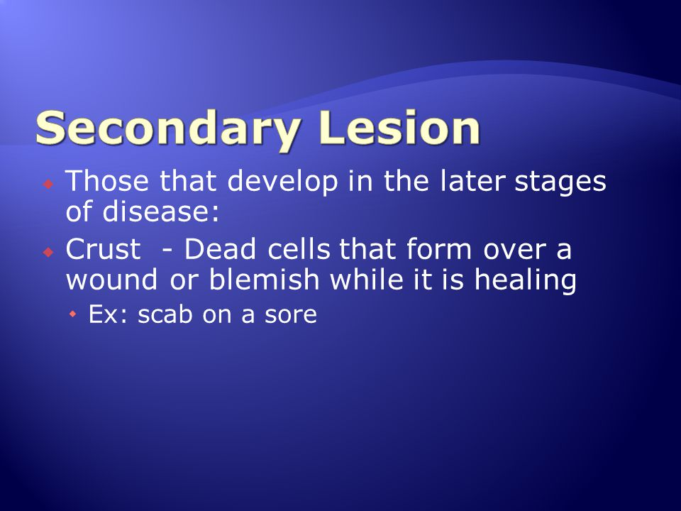 Secondary Lesion Those that develop in the later stages of disease: