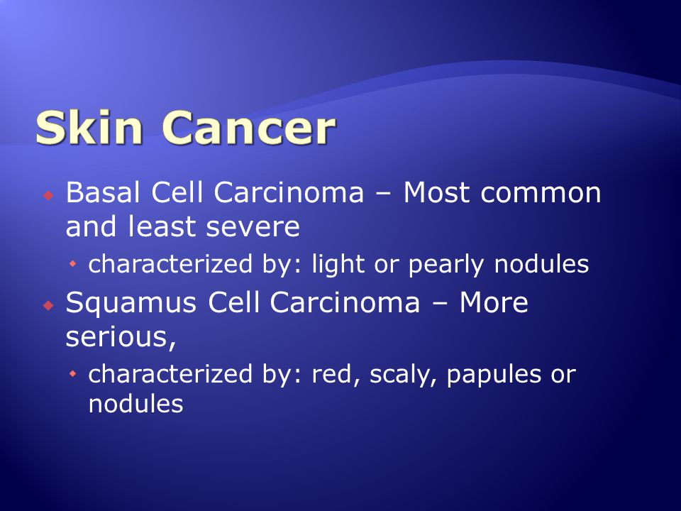 Skin Cancer Basal Cell Carcinoma – Most common and least severe