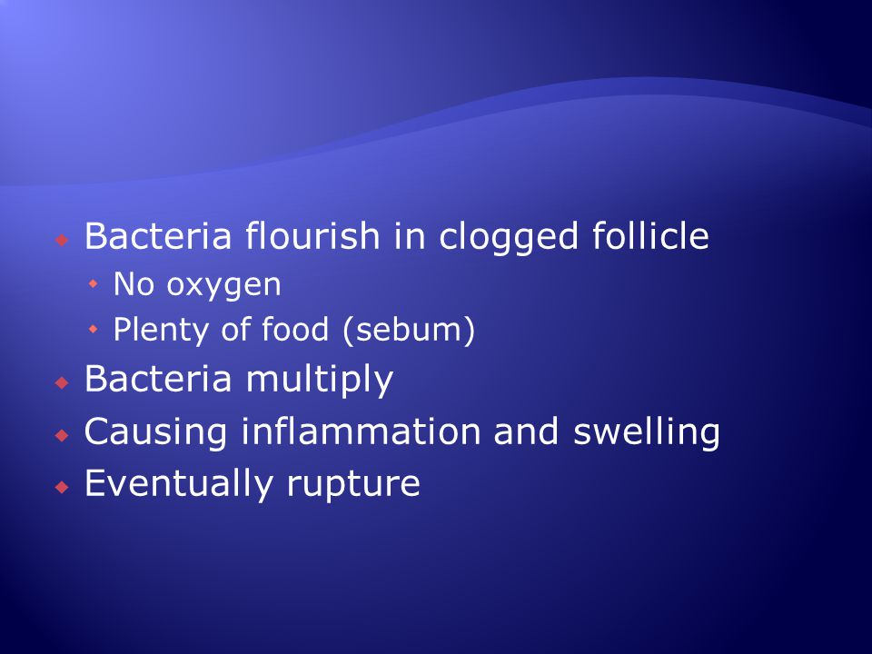 Bacteria flourish in clogged follicle