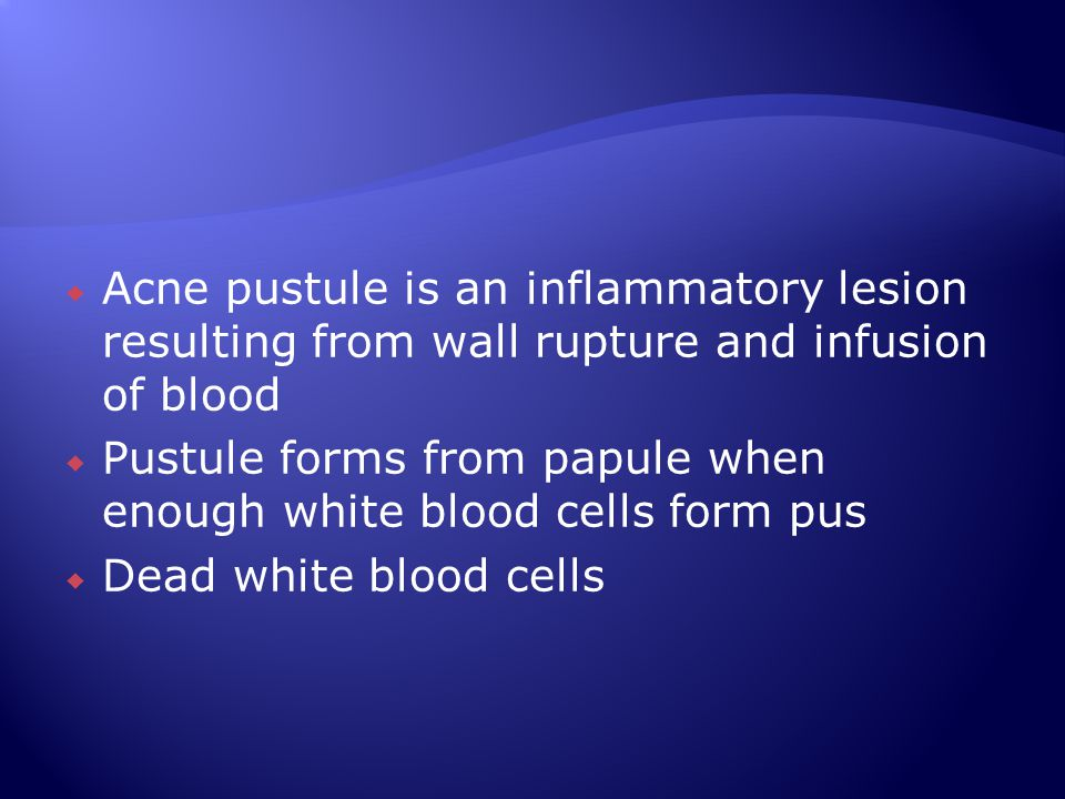 Acne pustule is an inflammatory lesion resulting from wall rupture and infusion of blood