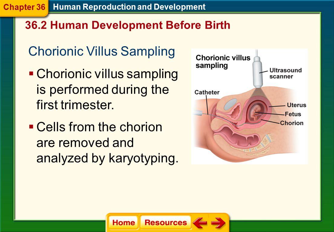 Chorionic Villus Sampling