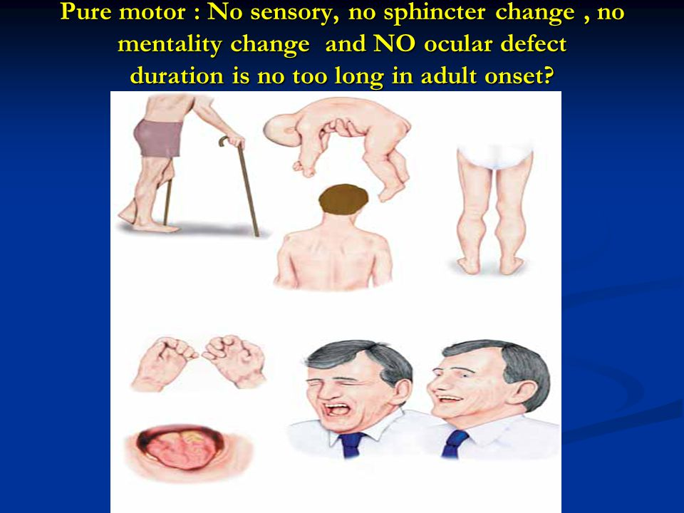 Pure motor : No sensory, no sphincter change , no mentality change and NO ocular defect duration is no too long in adult onset