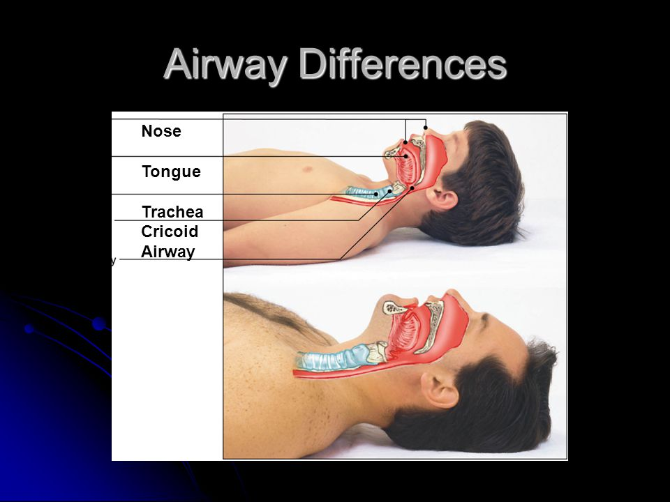 Airway Differences Nose Tongue Trachea Cricoid Airway