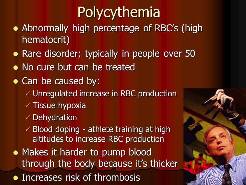 Polycythemia Abnormally high percentage of RBC's (high hematocrit)