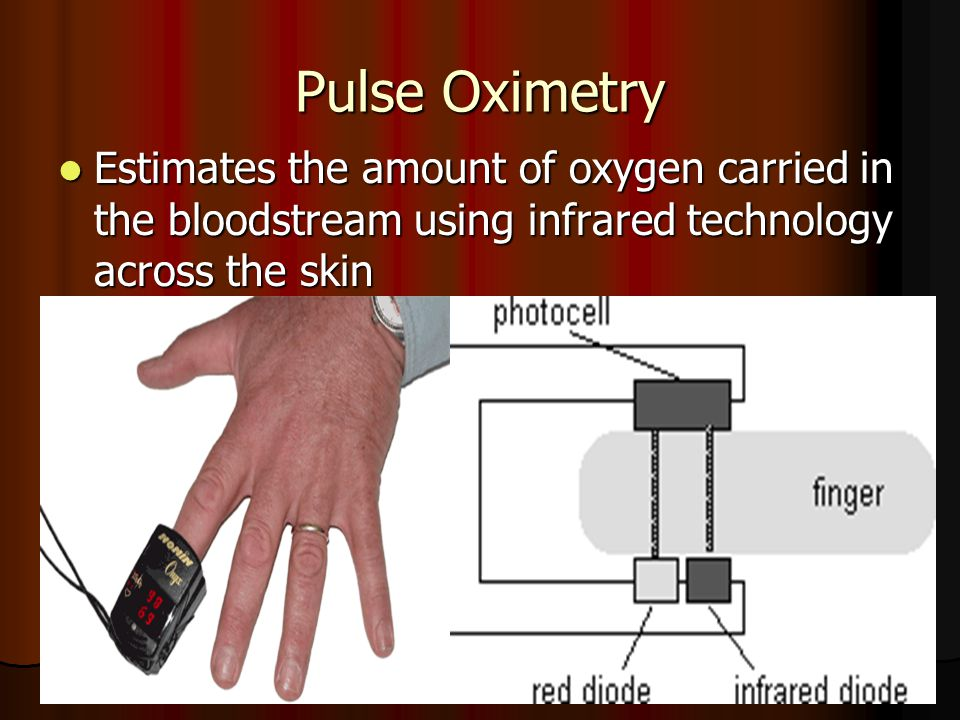Pulse Oximetry Estimates the amount of oxygen carried in the bloodstream using infrared technology across the skin.