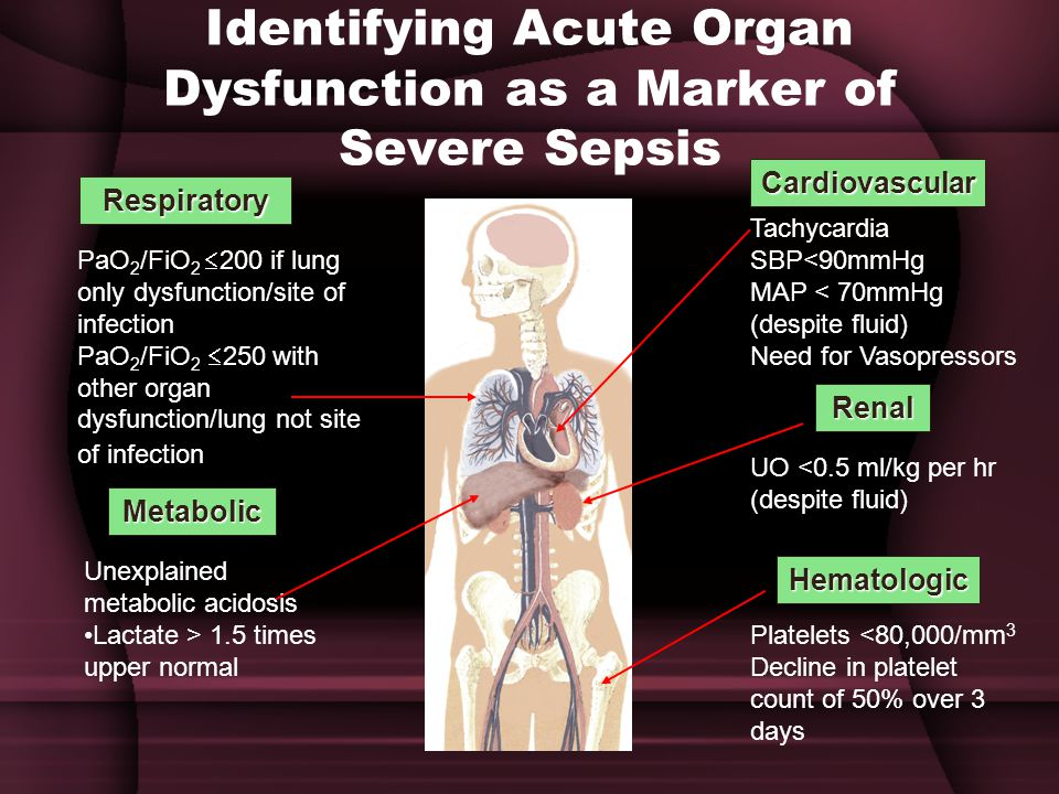 Identifying Acute Organ Dysfunction as a Marker of Severe Sepsis