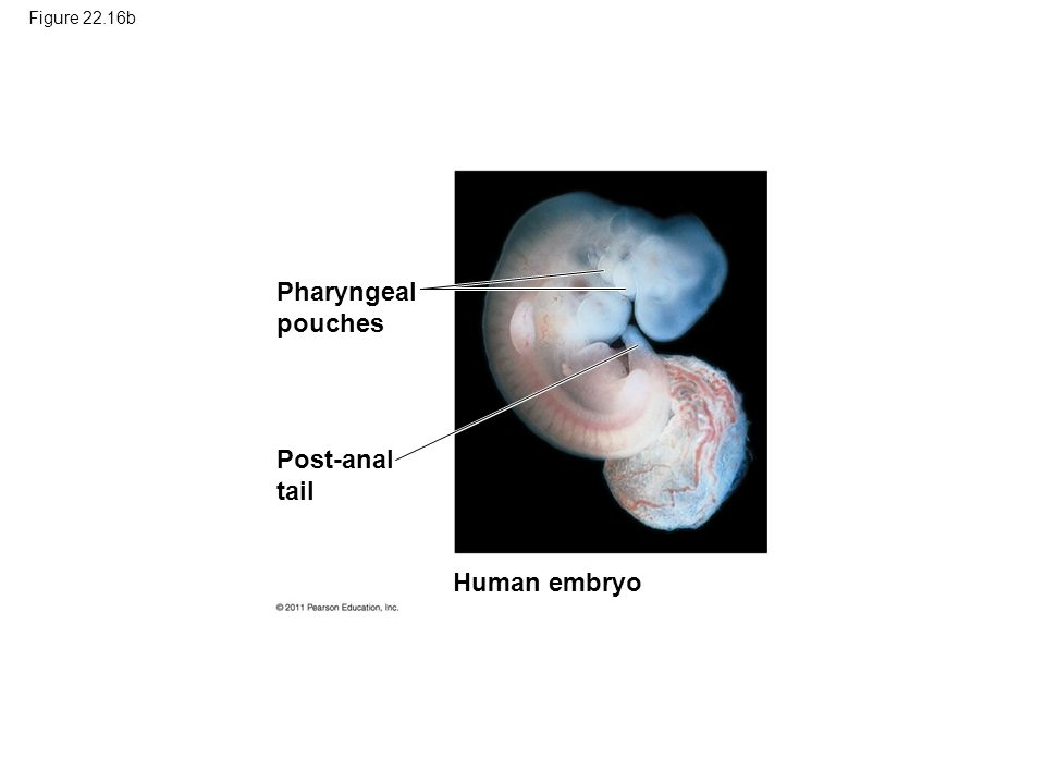 Pharyngeal pouches Post-anal tail Human embryo Figure 22.16b