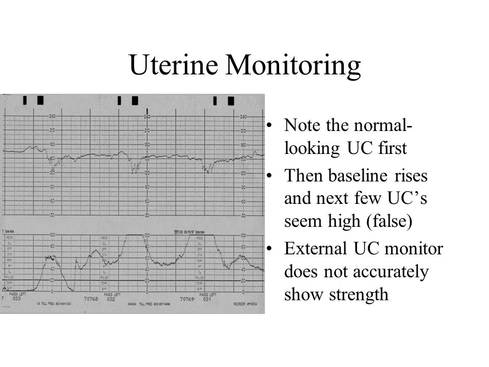 Uterine Monitoring Note the normal-looking UC first