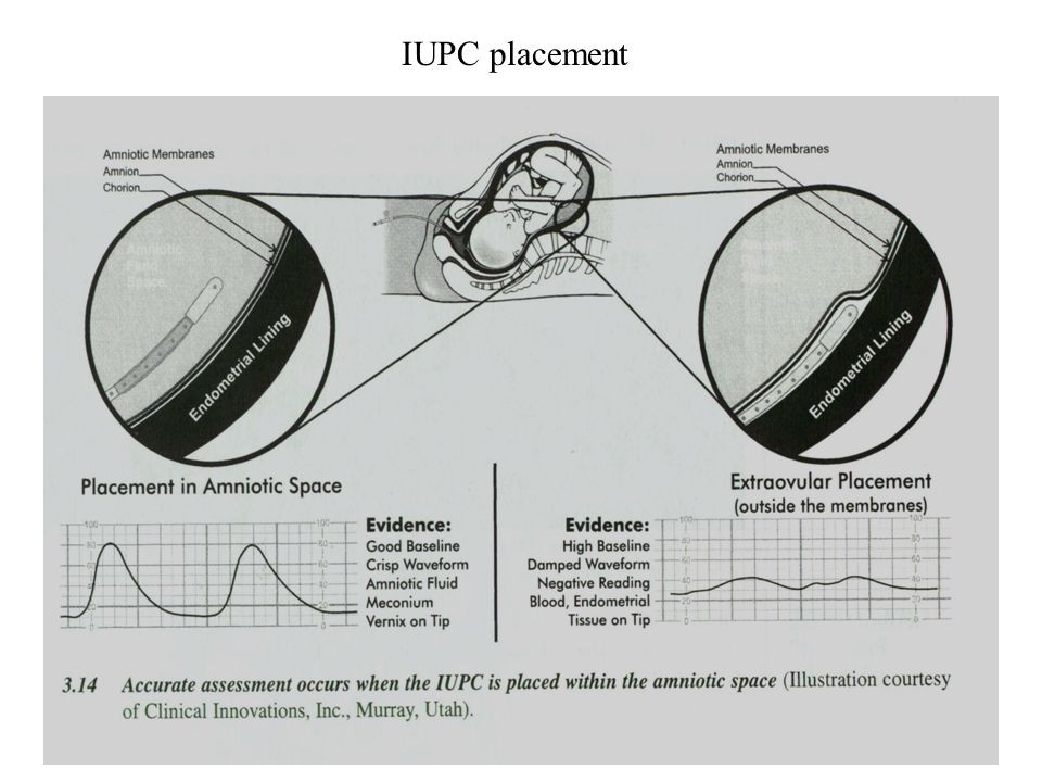 IUPC placement