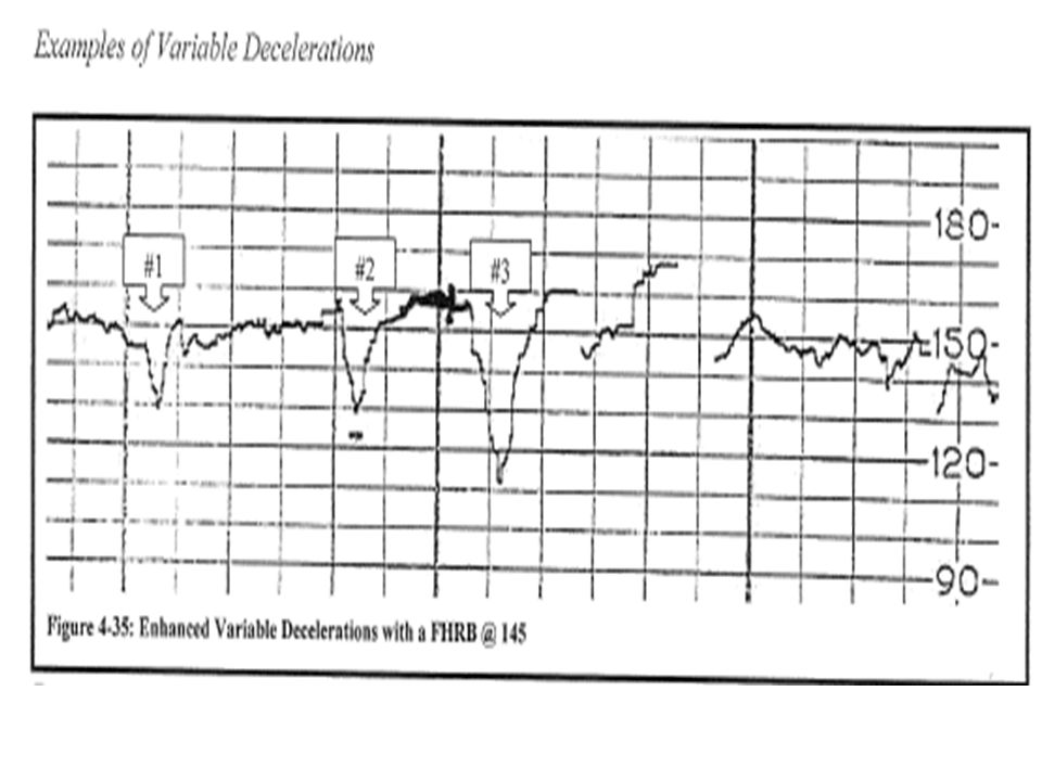 Example of 3 dips in FHR. Do they count as variable decelerations